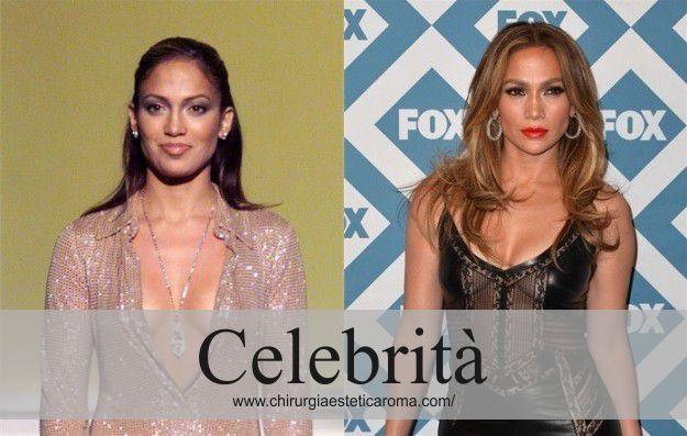 Jennifer Lopez: Mastoplastica Additiva VIP